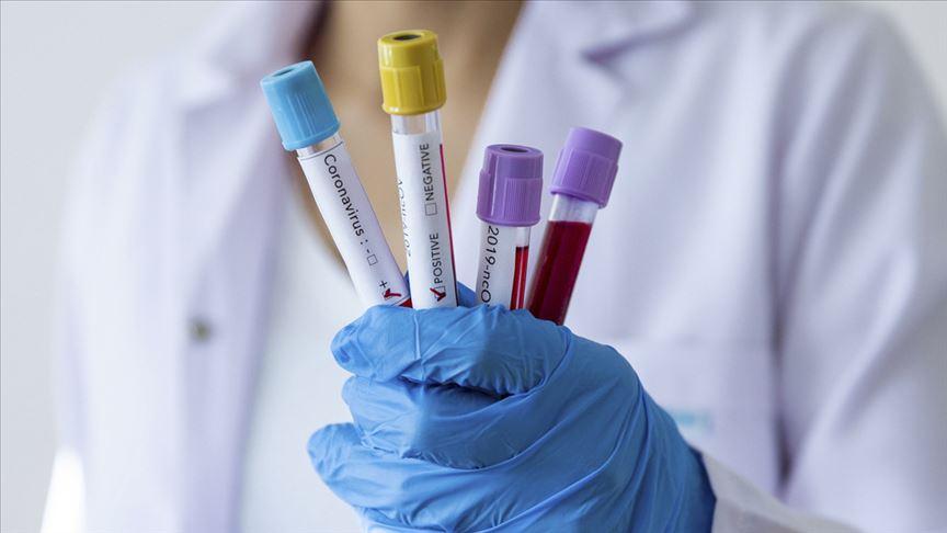 DSÖ: Koronavirüs aşısı için en az 12-18 ay beklemek gerekecek