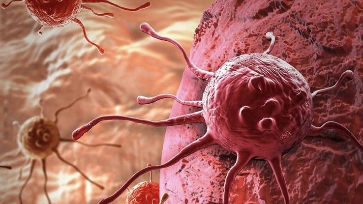 Kanseri 4 yıl öncesinden tespit etmek mümkün