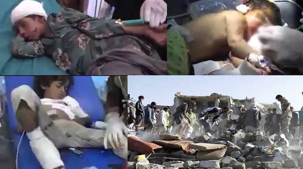 Suudi Koalisyon'dan Vahşet! Düğün Yerine Saldırdılar, Onlarca Ölü ve Yaralı Var