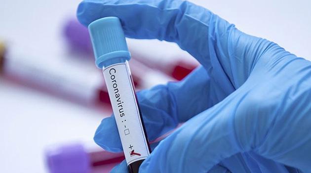 Bulgaristan'da koronavirüs vaka sayısı 1611'e yükseldi