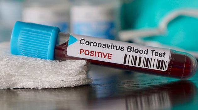 Dünya Sağlık Örgütü'nden koronavirüse karşı hükümetlere 'hazırlıklı olma' çağrısı