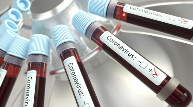 Suriye'de koronavirüs kaynaklı ilk ölüm gerçekleşti