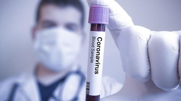 Kosova'da korona pandemisi nedeniyle vaka sayısı 108'e yükseldi