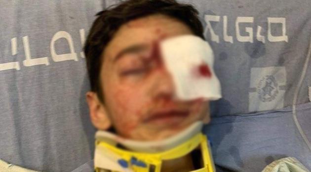 İşgal askerleri Kudüs'te bir çocuğu yaraladı