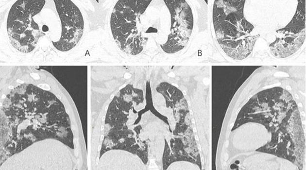 Koronavirüsten hayatını kaybeden kişinin akciğer röntgen filmleri paylaşıldı