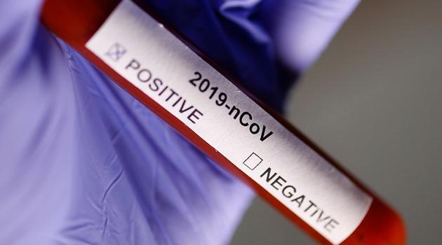 Fransa'da koronavirüs nedeniyle ölenlerin sayısı son 24 saatte 499 artarak 3 bin 523'e yükseldi
