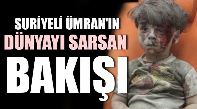 5 Yaşındaki Suriyeli Ümran'ın Dünyayı Sarsan Bakışı