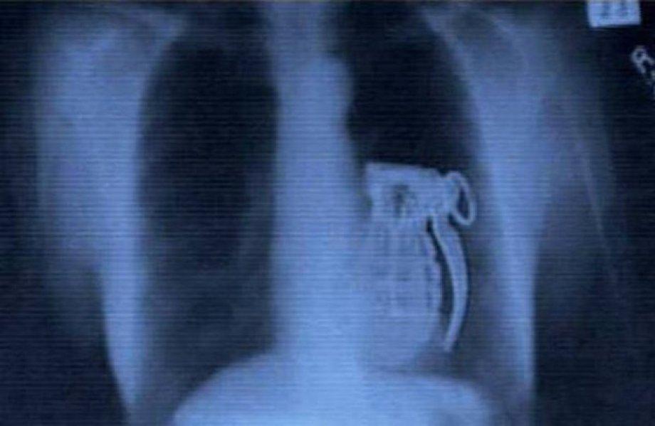 İnsan midesinden çıkan ilginç şeyler