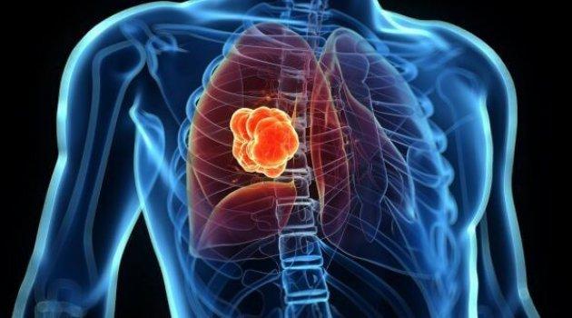 Akciğer kanserinin Türkiye'ye maliyeti 8,8 milyar TL