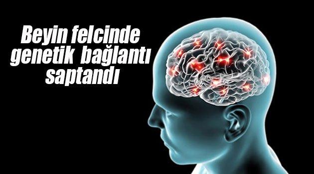 Beyin felcinde genetik bağlantı saptandı