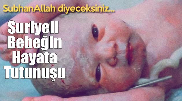 SubhanAllah diyeceksiniz... Suriyeli Bebeğin Hayata Tutunuşu