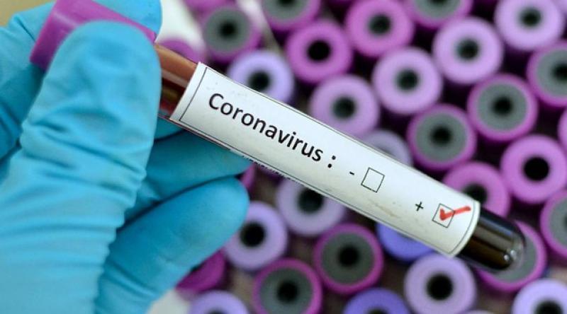 Brezilya'da son 24 saatte 346 kişi koronavirüsten öldü