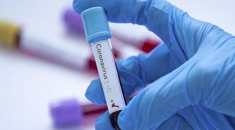 İspanya'da 1 günde 567 kişi koronavirüsten öldü