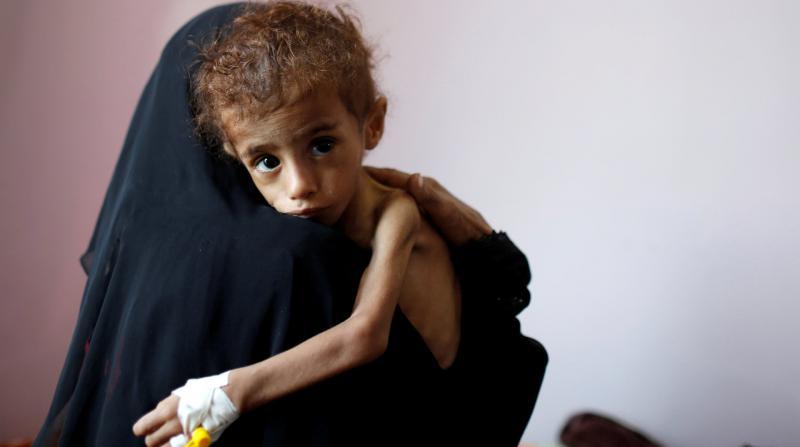 """BM: """"Yemen'de Halk Açlıktan Ölüyor"""""""