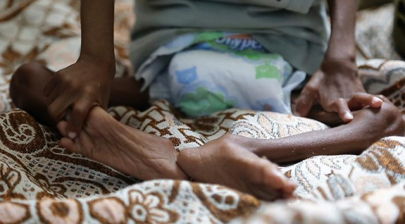 Yemen'de sona eren yardımlardan 9 milyon kişi zarar gördü