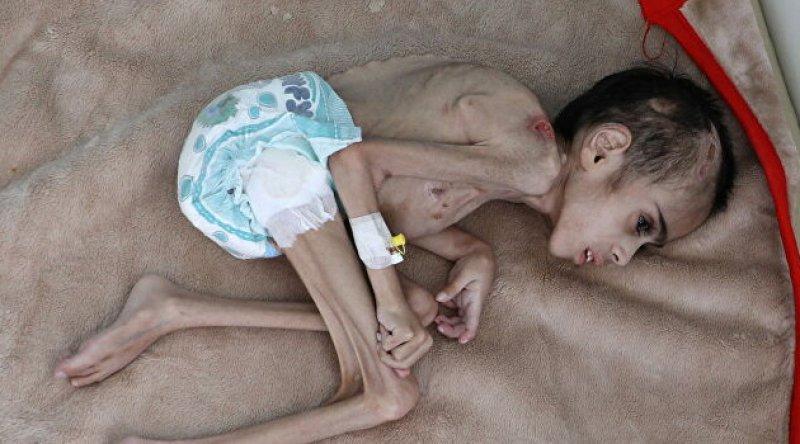 Yemen'deki durumun acı tablosu: 7 yaşındaki Faid Samim 7 kilogram ağırlığında